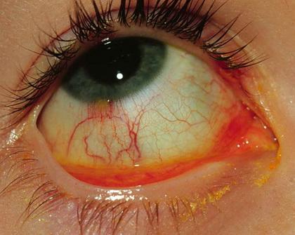 lentes de contacto paraguay red contactos