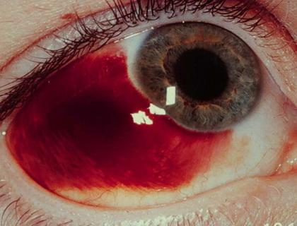 Eyelid - Bleeding Through